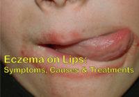 Eczema on lips