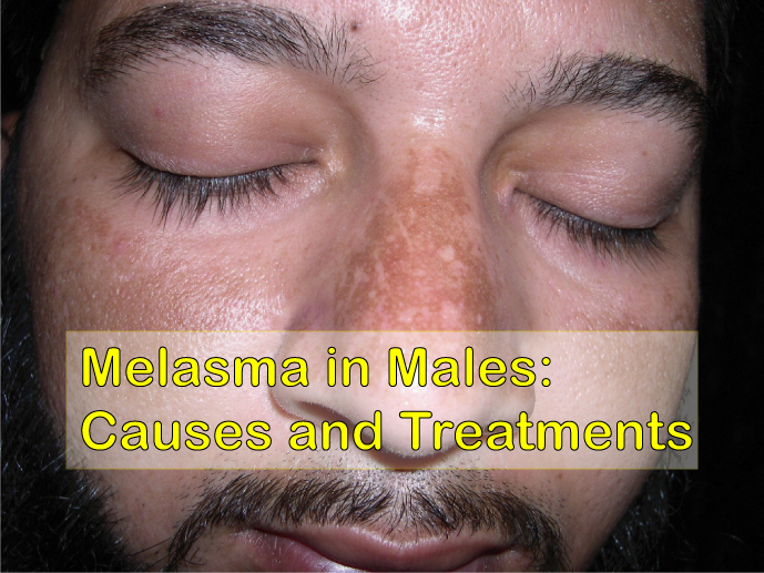 Melasma In Males Causes And Treatments Disfreeskin