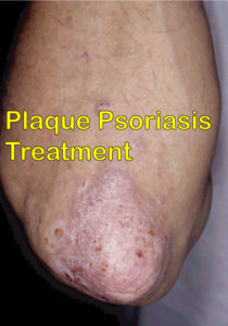 plaque psoriasis treatment
