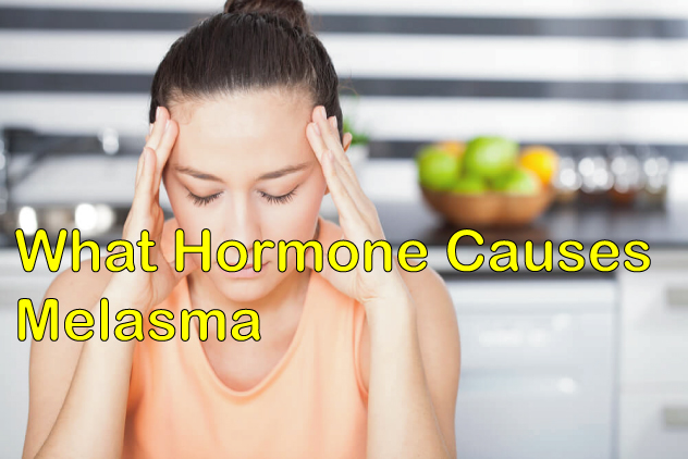 what hormone causes melasma