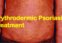 erythrodermic psoriasis treatment