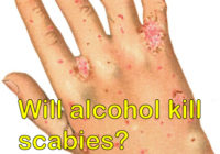 Will alcohol kill scabies