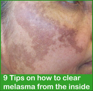 How to clear melasma from the inside